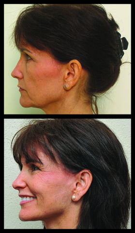 Roberts Cosmetic Surgery SD 3-16 SPOT MCK_WEB2