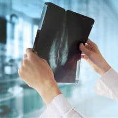 We've Come A Long Way Baby—Mammogram tech is on the move