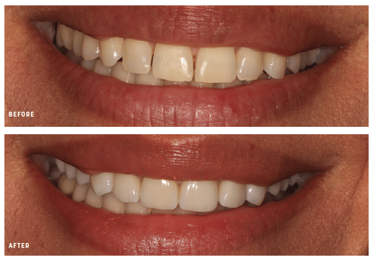 before and after lathrop dental